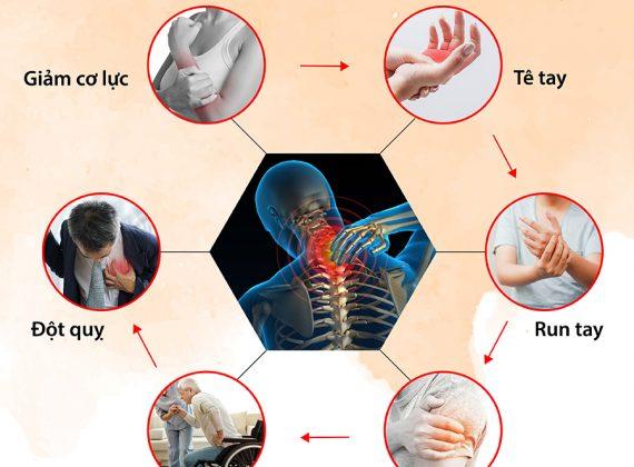 Tác hại của đau vai gáy gây ra bạn nên biết